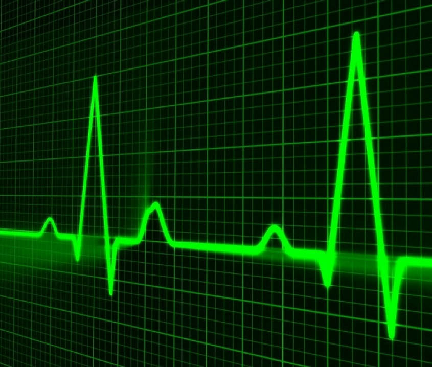 Heart monitor - featured image