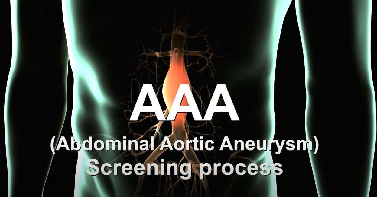Abdominal Aortic Aneurysm Screening