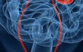 Human body scan image