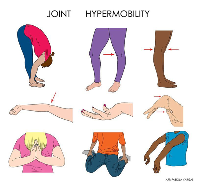 Hypermobile Ehlers-Danlos Syndrome
