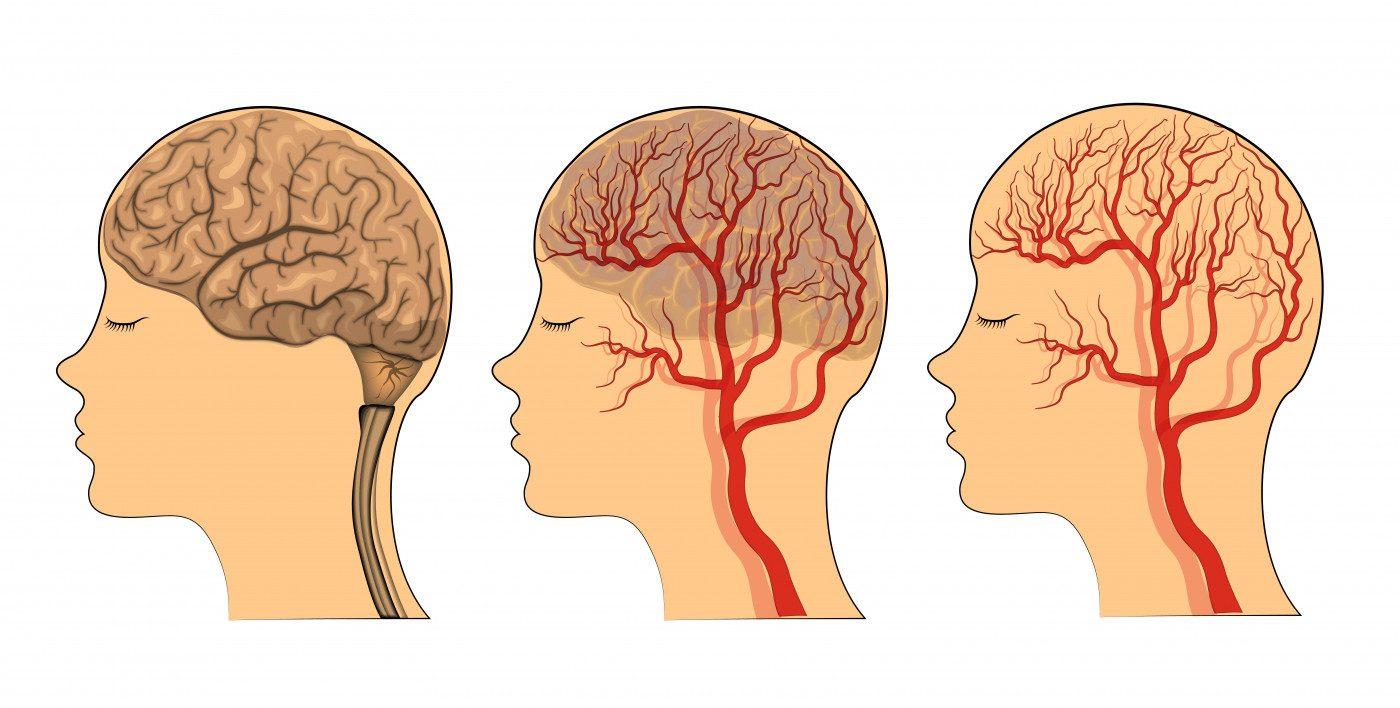 Vascular EDS